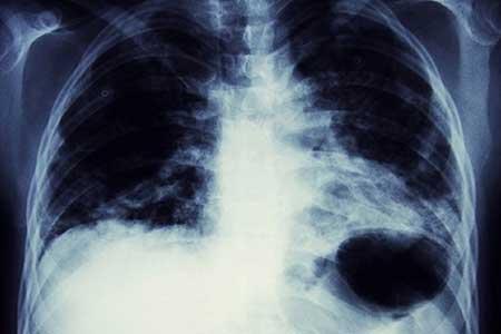ابتلا به بیماری های وحشتناک با استعمال سیگار
